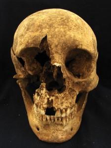 Teschio dello scheletro T15, un maschio tra i 35 e i 50 anni, seppellito in un cimitero nei pressi di Casal Bertone, Roma. Le analisi suggeriscono possa essere nato vicino le Alpi. Credit: Kristina Killgrove