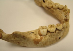 Denti da latte di epoca medievale. Credit: University of Kent