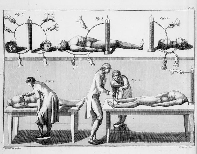 Giovanni Aldini Frankenstein elettricità