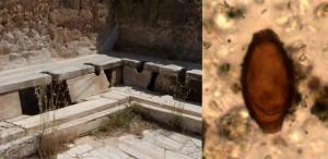 A sinistra: latrine romane da Leptis Magna in Libia, Credit: Craig Taylor. A destra: uova di verme a frusta di epoca romana dalla Turchia, Credit: Piers Mitchell