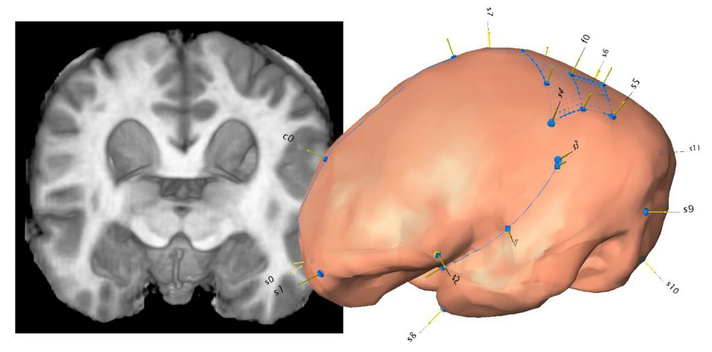 brain fossils neuroanatomy