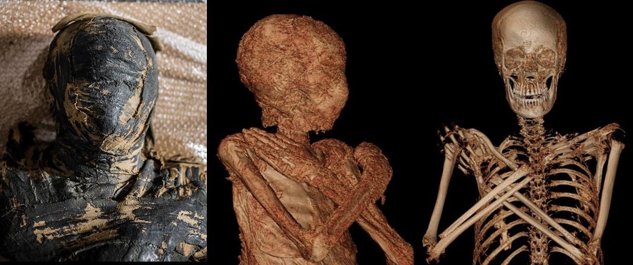 Warsaw Mummy Project